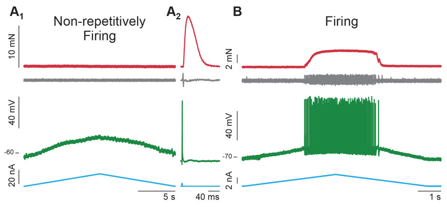 In als do motor neurons go out with a bang or a whimper alzforum the findings suggested that the hypoexcitable motor neurons were connected to the most vulnerable motor units which degenerate earliest in disease ccuart Images