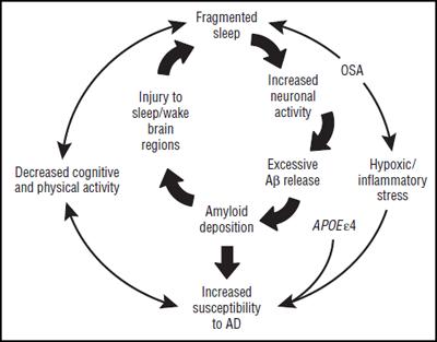 Obstructive Sleep Apnea May Be Linked to Depression pics