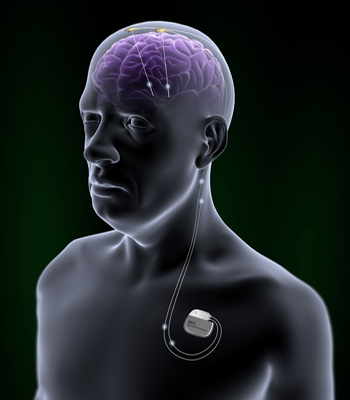Deep-Brain Stimulation: Decade of Surgical Relief, Not Just for PD ...