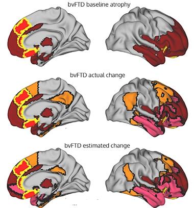 Un modèle d'imagerie localise l'épicentre de maladies neurodégénératives et prédit l'atrophie