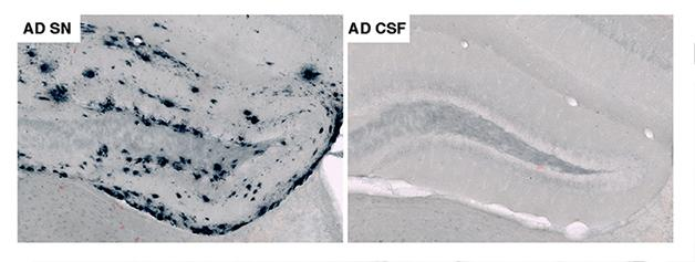 Bad Seeds—Potent Aβ Peptides Instigate Plaques, Won't Be Fixed