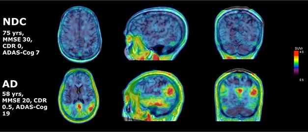 Clinical Trials on Alzheimer's Disease 2018 | ALZFORUM